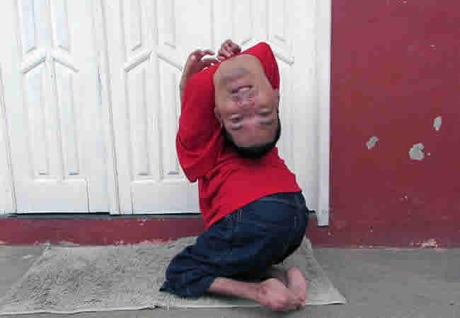 Arthrogryposis Multiplex Congenita: An Upside Down Head
